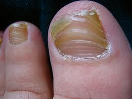 onychomycosis nail fungus symptoms nail fungus infection nail fungus  onychomycosis nail infections nail fungus fungus infection fungus growth fungal nail infection fungal infection candida albicans